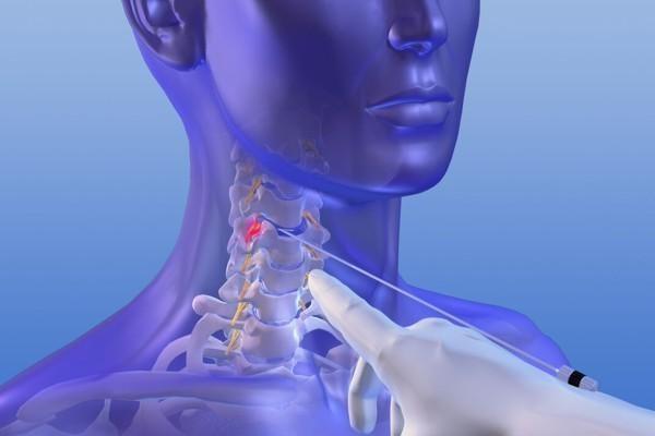 Bandscheibenoperation Halswirbelsäule - APEX Spine