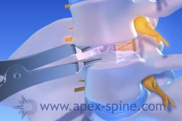 Bandscheibenprothese Apex