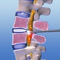 Bandscheibenoperation-Entfernung-Bandscheibenvorfall
