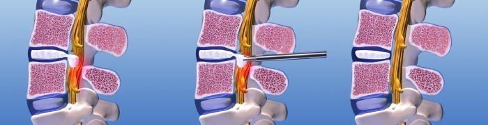 endoskopische-Nukleotomie
