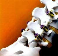Nach Rückenschmerzen wieder aufrecht durch's Leben