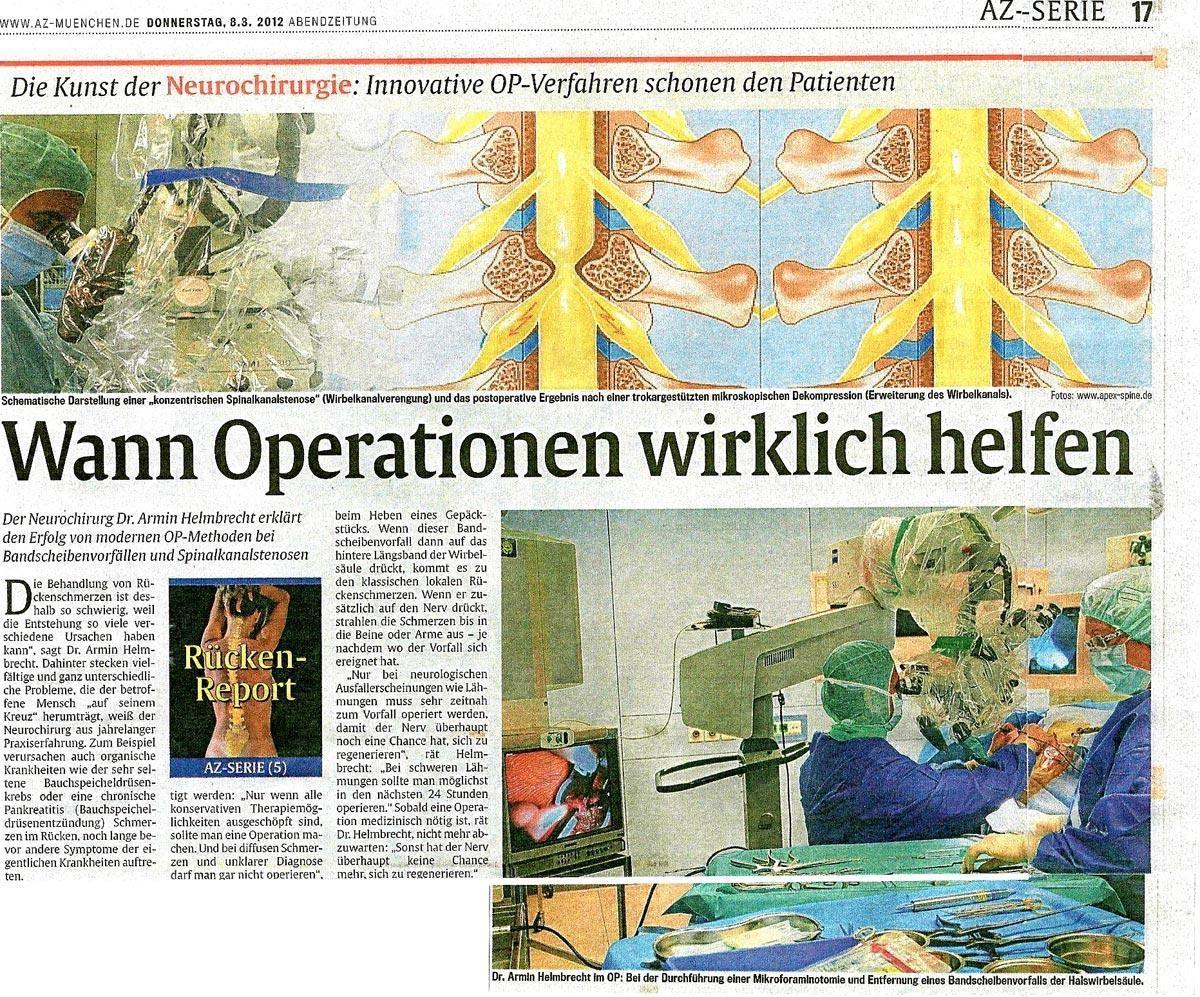 Münchner AZ: Wann Operationen wirklich helfen (Teil 1)